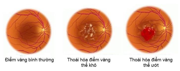 lam-the-nao-de-han-che-lao-hoa-mat-som-2