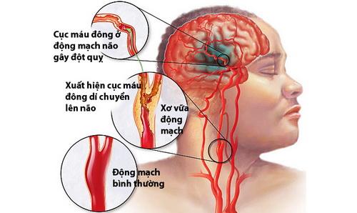 Tai biến mạch máu não: Bệnh nguy hiểm nhưng có thể phòng tránh được